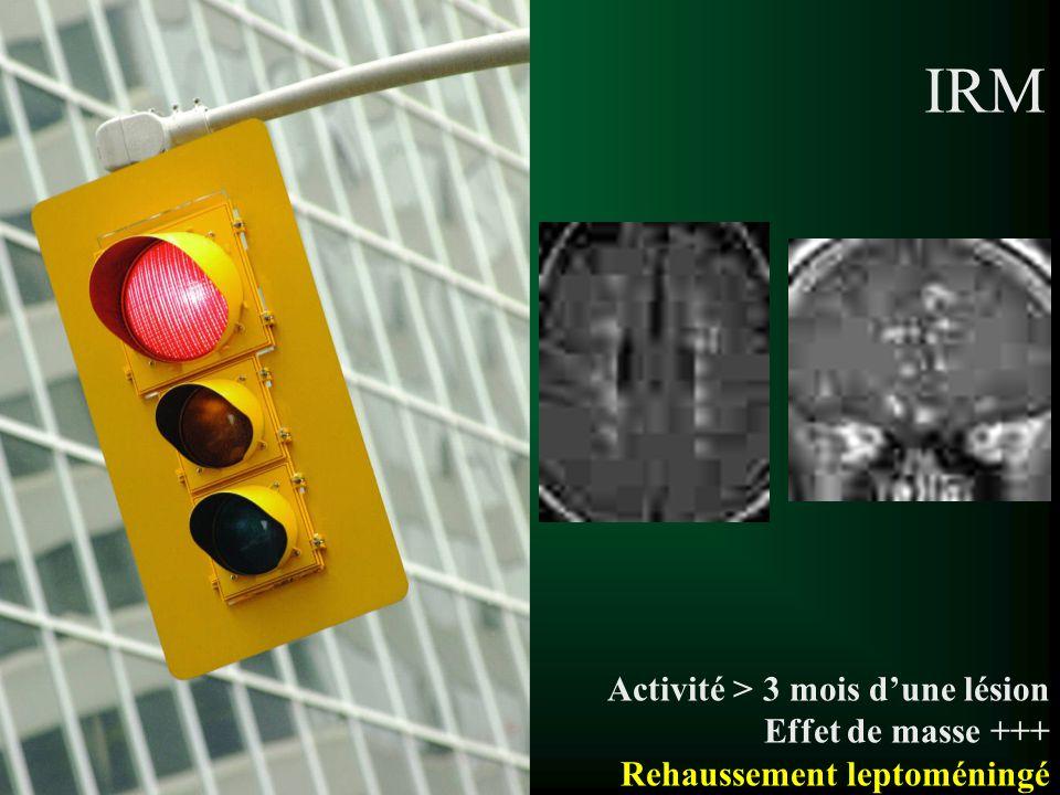 Aspects des lésions de SEP t Hypersignaux T2 SB –Ovoïdes, arrondis –Perpendiculaire aux ventricules –Qq mm à qq cm –Parfois halo moins intense (œdème) –Confluents