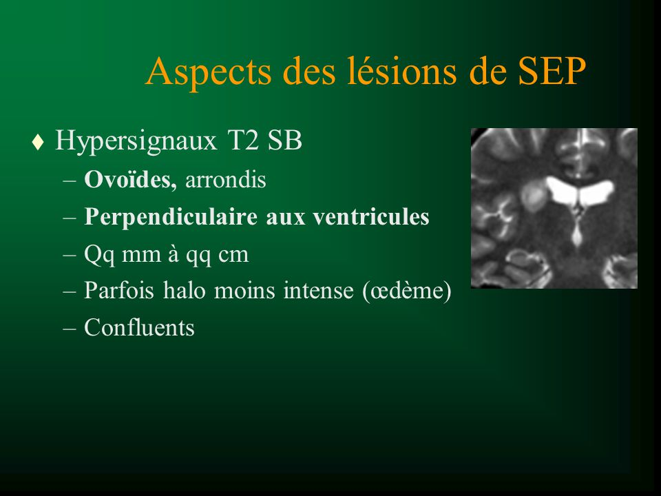 Aspects des lésions de SEP t Hypersignaux T2 SB –Ovoïdes, arrondis –Perpendiculaire aux ventricules –Qq mm à qq cm –Parfois halo moins intense (œdème)