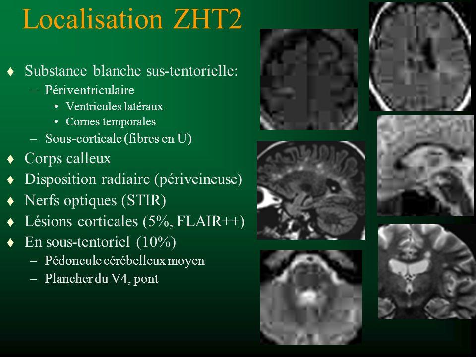 Localisation ZHT2 t Substance blanche sus-tentorielle: –Périventriculaire Ventricules latéraux Cornes temporales –Sous-corticale (fibres en U) t Corps