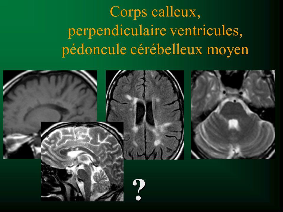 Syndrome de Susac (1979) t Microangiopathie rétine, cochlée, cerveau (vasculopathie rétino-cochléo-cérébrale) t Micro-infarctus liés à des occlusions artériolaires t Lésions corps calleux et SB sous-corticale (DD avec SEP (diffusion*)) t Et NGC et cortex t Prise de contraste possible t Diminue dans le temps *Xu et al.Magn Reson Imaging 2004;22:1295-8 White, et al.
