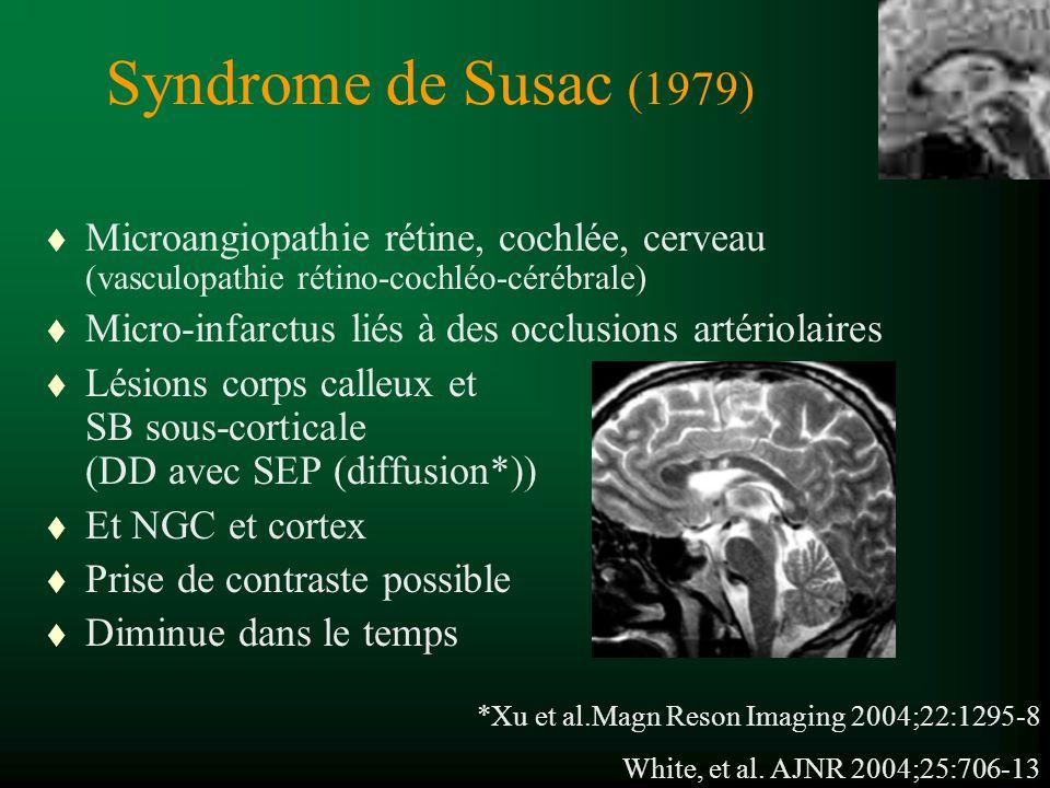 Syndrome de Susac (1979) t Microangiopathie rétine, cochlée, cerveau (vasculopathie rétino-cochléo-cérébrale) t Micro-infarctus liés à des occlusions