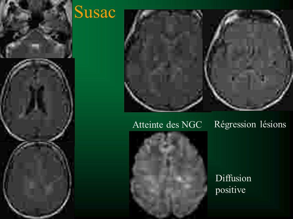 Susac Atteinte des NGC Diffusion positive Régression lésions