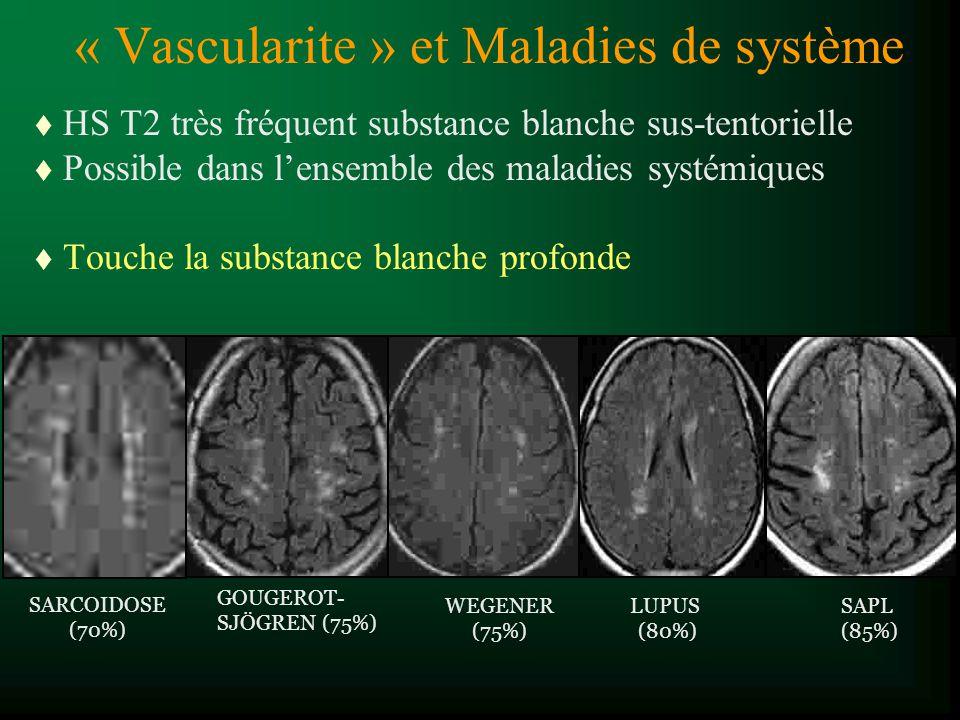 t HS T2 très fréquent substance blanche sus-tentorielle t Possible dans lensemble des maladies systémiques t Touche la substance blanche profonde GOUG