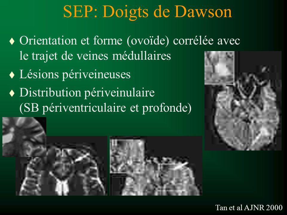 SEP: Doigts de Dawson t Orientation et forme (ovoïde) corrélée avec le trajet de veines médullaires t Lésions périveineuses t Distribution périveinula
