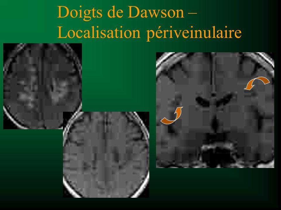 Dilatation périveinulaire Ge et al. AJNR 2005