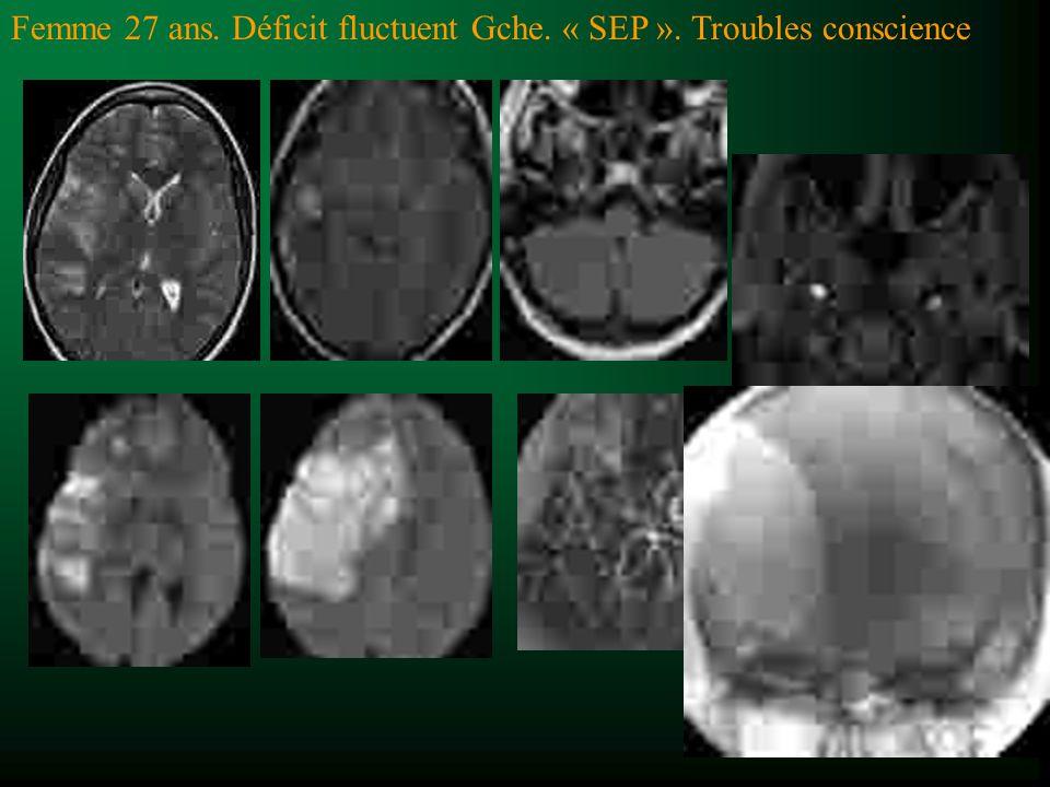 Diagnostic différentiel des ZHT2 t Hypersignaux T2, NON spécifiques t Leucoaraïose (50% > 50 ans) –Distribution SB profonde et sous-corticale –Lacunes NGC et centre du pont –Mais pas dans: corps calleux, fibre U, nerfs optiques –Hypersignaux plus petits –Pas orientés en périveinulaire t Lupus et SAPL (vascularite) –Comme leucoaraïose t Behçet : diencéphale t Sarcoïdose : HST2 mais pdc leptoméningée