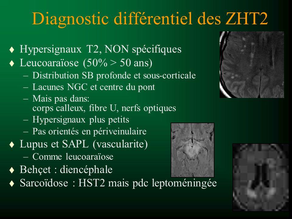Diagnostic différentiel des ZHT2 t Hypersignaux T2, NON spécifiques t Leucoaraïose (50% > 50 ans) –Distribution SB profonde et sous-corticale –Lacunes