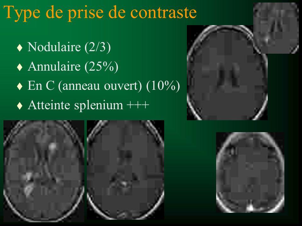 Type de prise de contraste t Nodulaire (2/3) t Annulaire (25%) t En C (anneau ouvert) (10%) t Atteinte splenium +++