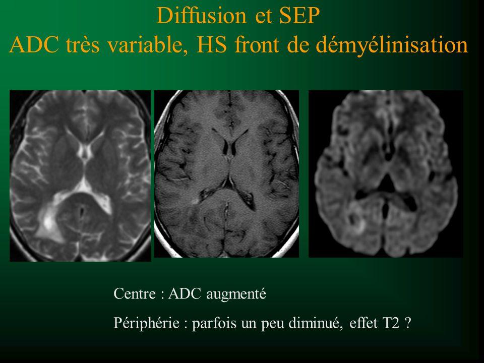 Diffusion et SEP ADC très variable, HS front de démyélinisation Centre : ADC augmenté Périphérie : parfois un peu diminué, effet T2 ?