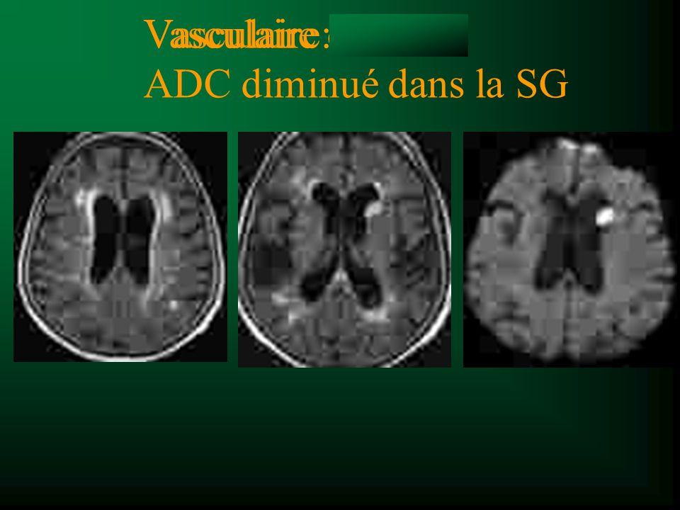 Vasculaire: ADC diminué dans la SG Vasculaire ou SEP