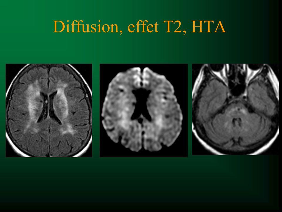 Diffusion, effet T2, HTA