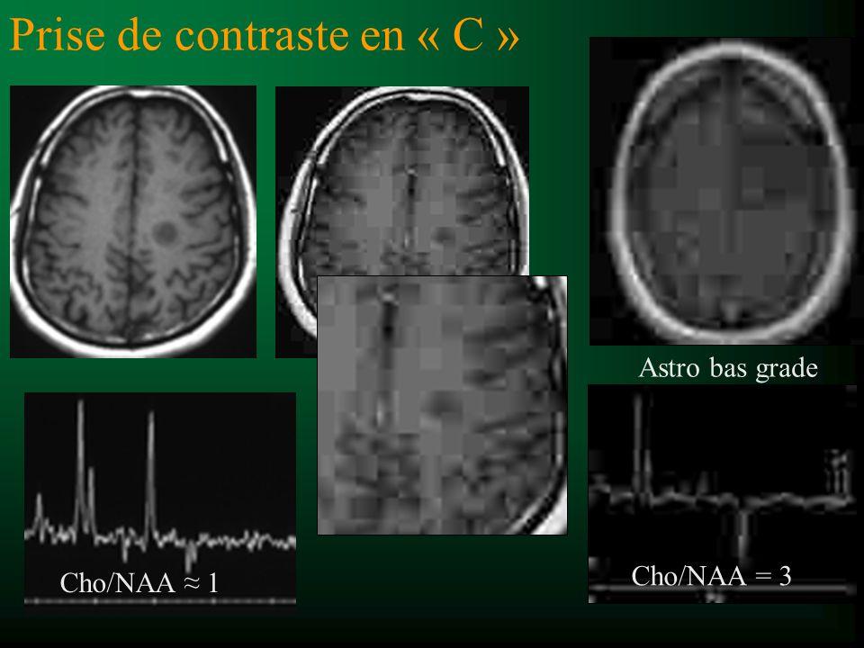 Prise de contraste en « C » Astro bas grade Cho/NAA 1 Cho/NAA = 3