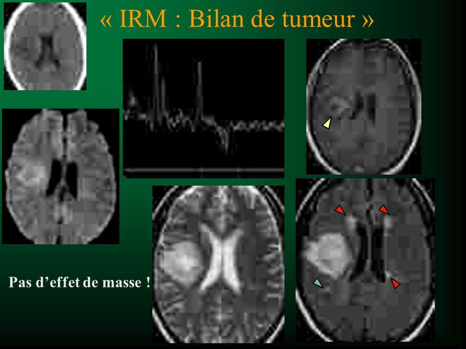 « IRM : Bilan de tumeur » Pas deffet de masse !