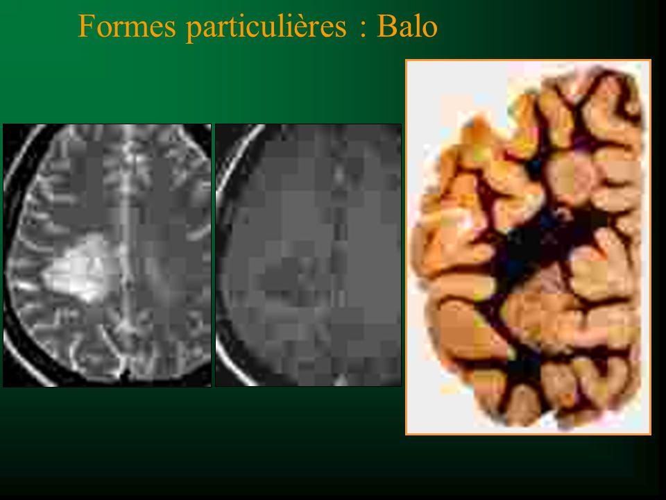 Formes particulières : Marburg t Forme aigue, fulminante t Mort/ handicap qq mois t Grandes plaques coalescentes