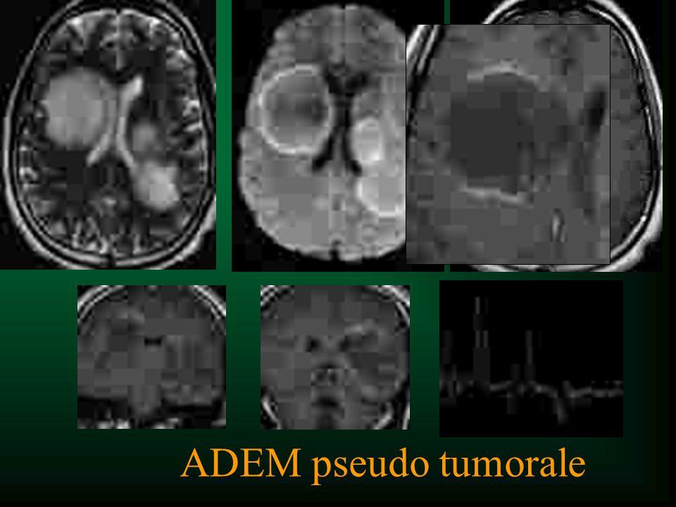ADEM pseudo tumorale