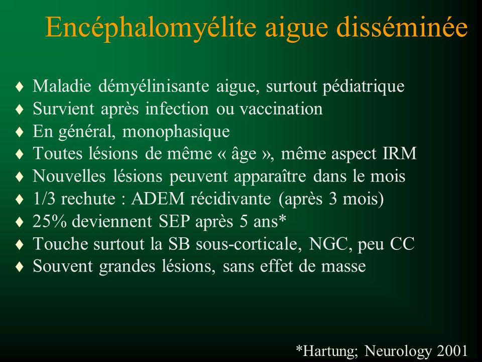 Encéphalomyélite aigue disséminée t Maladie démyélinisante aigue, surtout pédiatrique t Survient après infection ou vaccination t En général, monophas