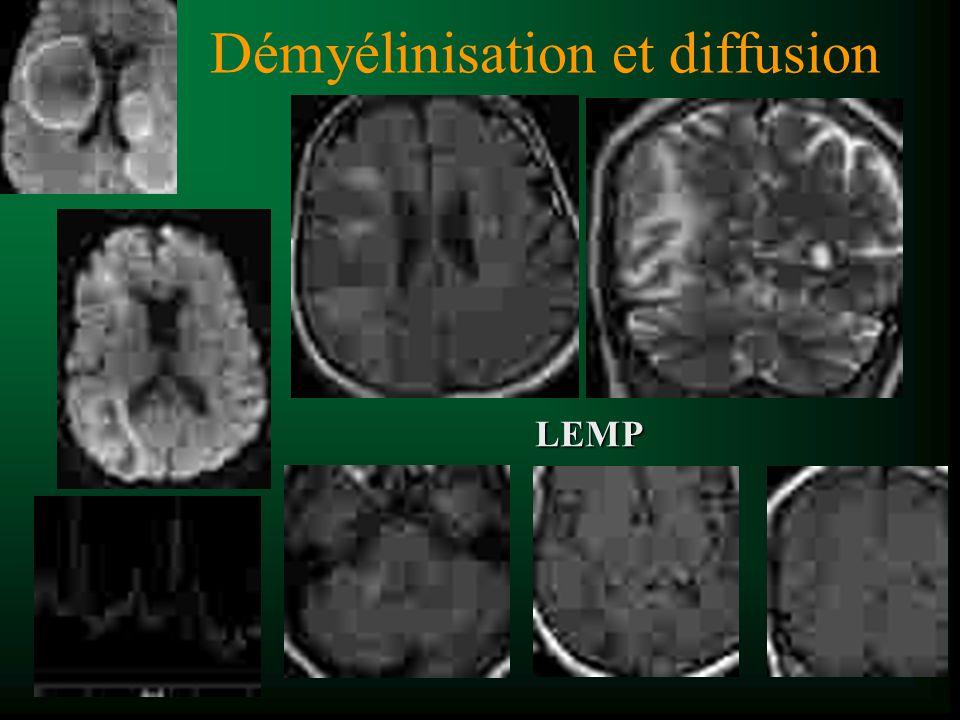 Démyélinisation et diffusion LEMP