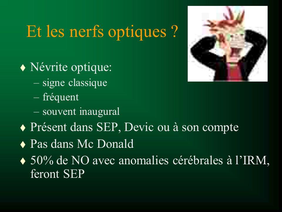 Et les nerfs optiques ? t Névrite optique: –signe classique –fréquent –souvent inaugural t Présent dans SEP, Devic ou à son compte t Pas dans Mc Donal
