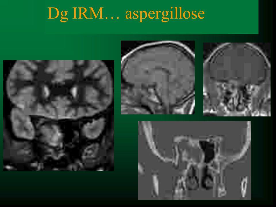Dg clinique NO …Dg IRM… aspergillose