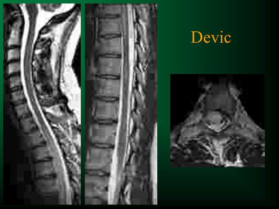 t 25% des patients t Cervical t Postéro-latéral t < hémie-moelle t Pas limite SB/SG t < 2 hauteurs vertébrales t Souvent multiples t Asymptomatiques t PDC comme cerveau t STIR plus sensible* Lésions médullaires de SEP *Rocca et al.