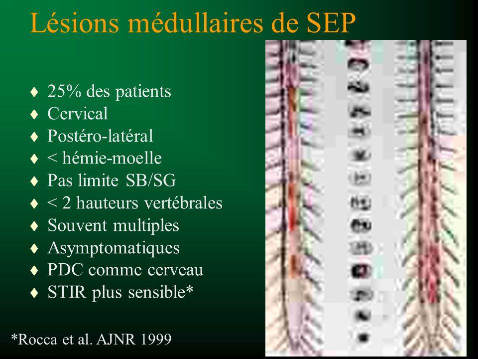 t 25% des patients t Cervical t Postéro-latéral t < hémie-moelle t Pas limite SB/SG t < 2 hauteurs vertébrales t Souvent multiples t Asymptomatiques t