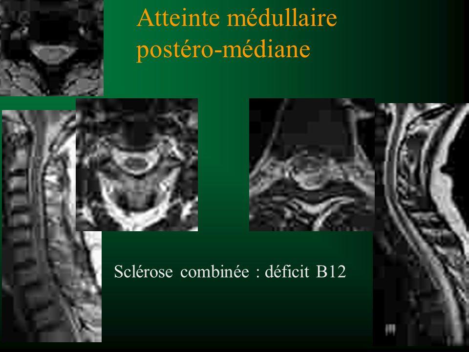 Atteinte médullaire postéro-médiane Sclérose combinée : déficit B12
