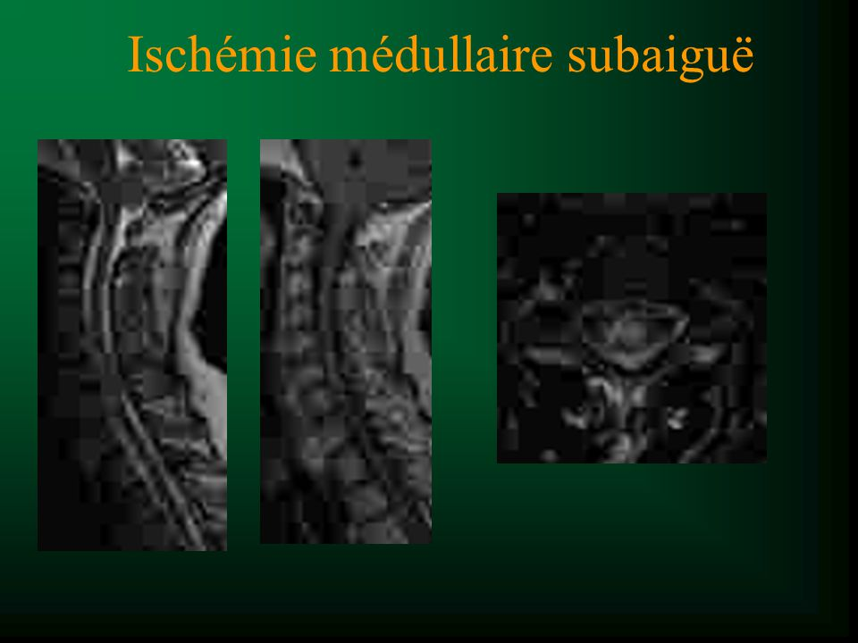 Diagnostic (clinique + LCS + sérologie) : Maladie de Lyme