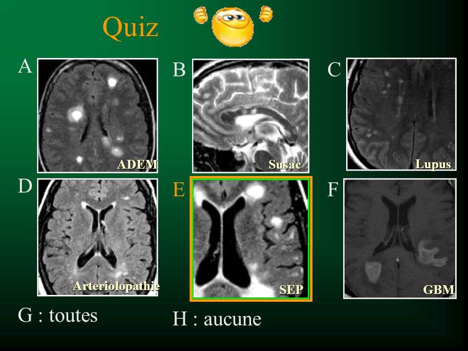 Quiz A D G : toutes B E H : aucune CFCF Lupus SusacADEM Arteriolopathie SEPGBM