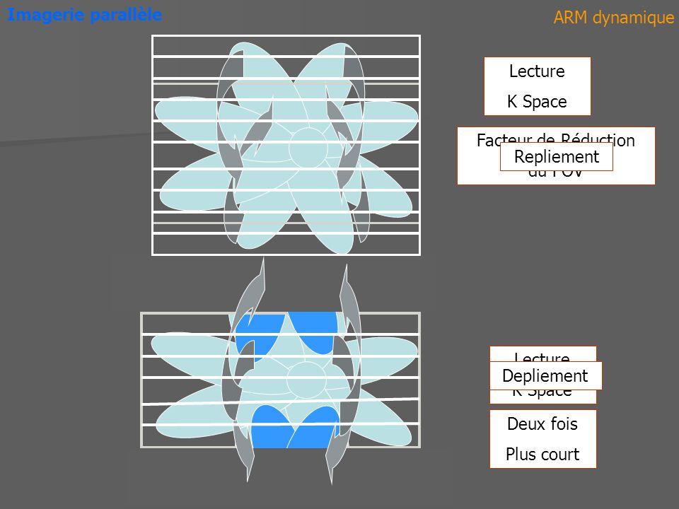ARM dynamique Facteur de Réduction du FOV Lecture K Space Imagerie parallèle Repliement Depliement Lecture K Space Deux fois Plus court