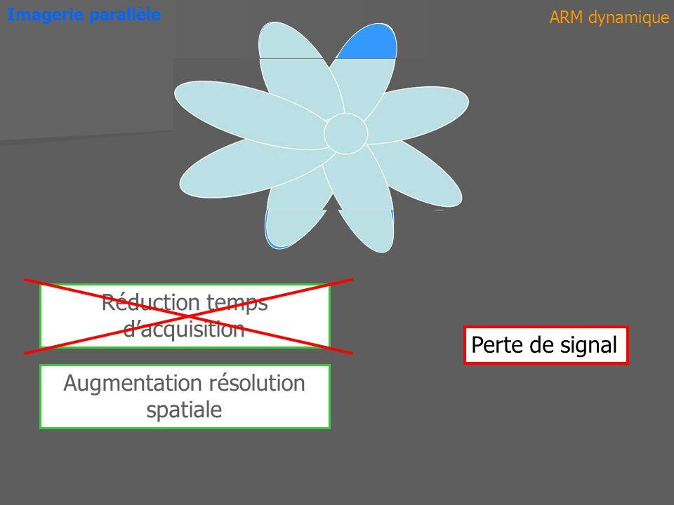 ARM dynamique Imagerie parallèle Réduction temps dacquisition Perte de signal Augmentation résolution spatiale