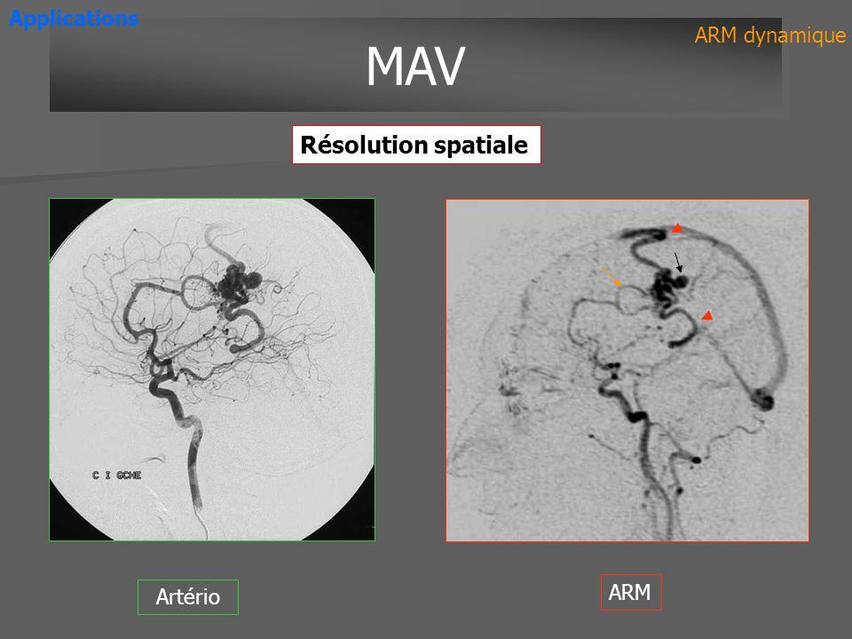 Artério ARM MAV ARM dynamique Applications Résolution spatiale