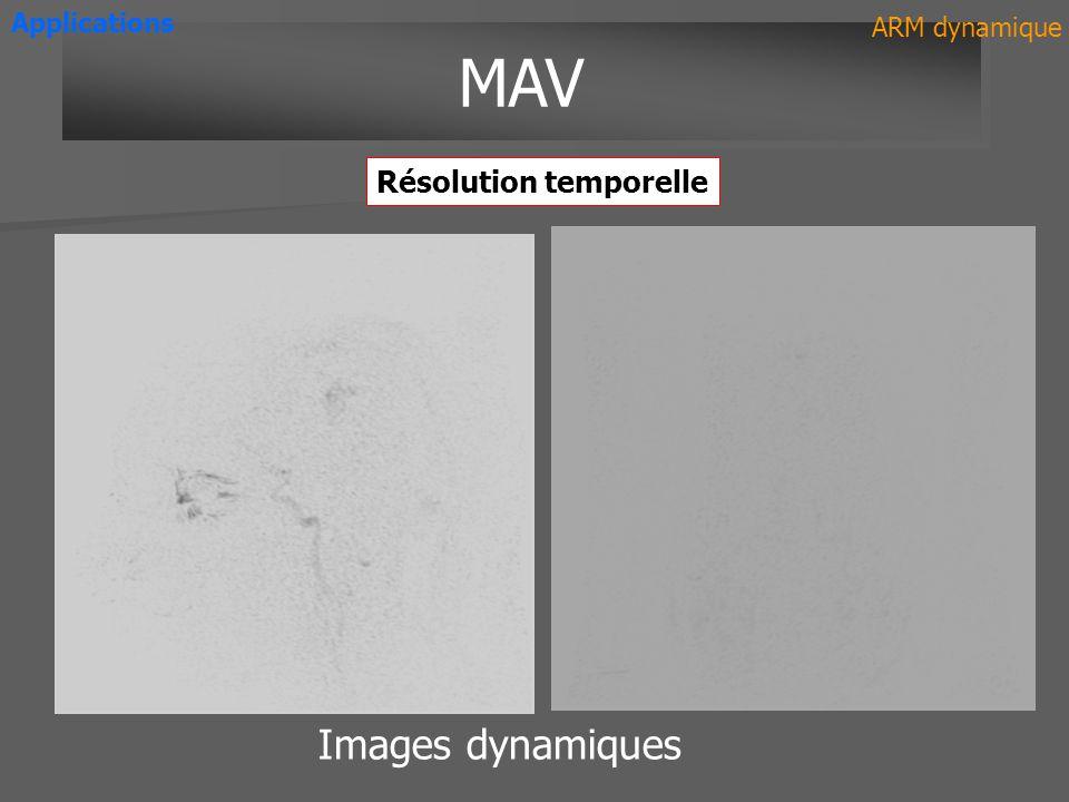 Images dynamiques MAV Applications ARM dynamique Résolution temporelle