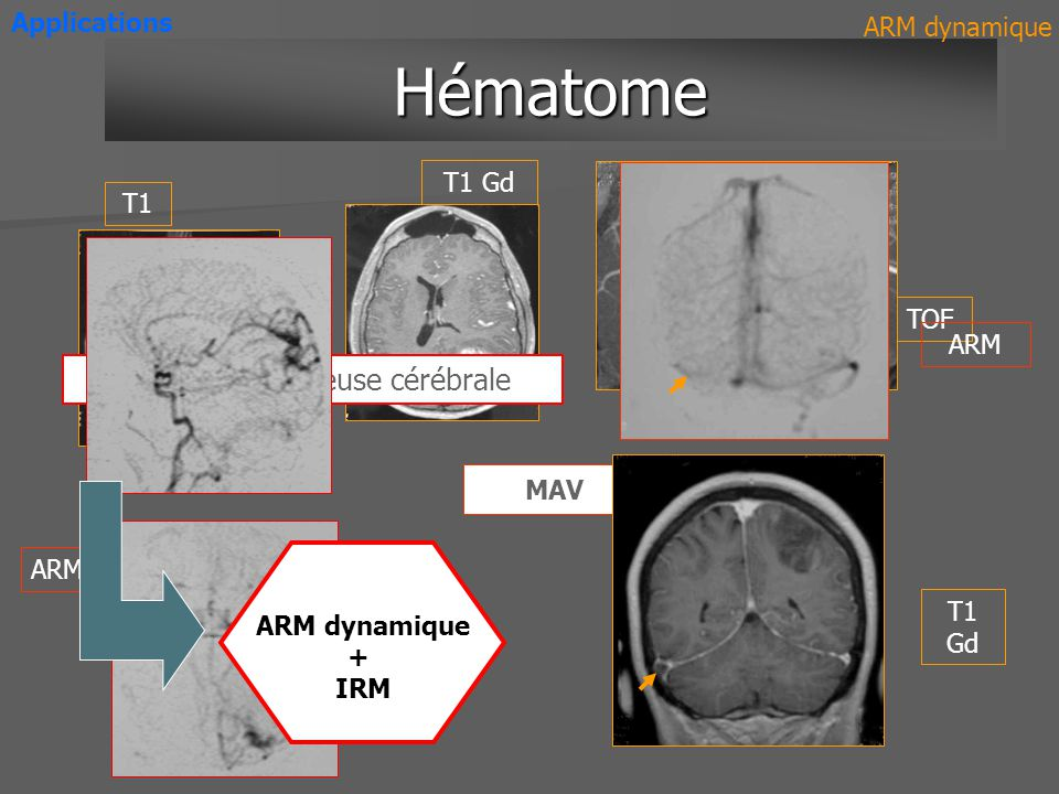 HématomeHématome TOF ARM Applications T1 T1 Gd ARM dynamique Thrombose veineuse cérébrale MAV ARM T1 Gd ARM dynamique + IRM