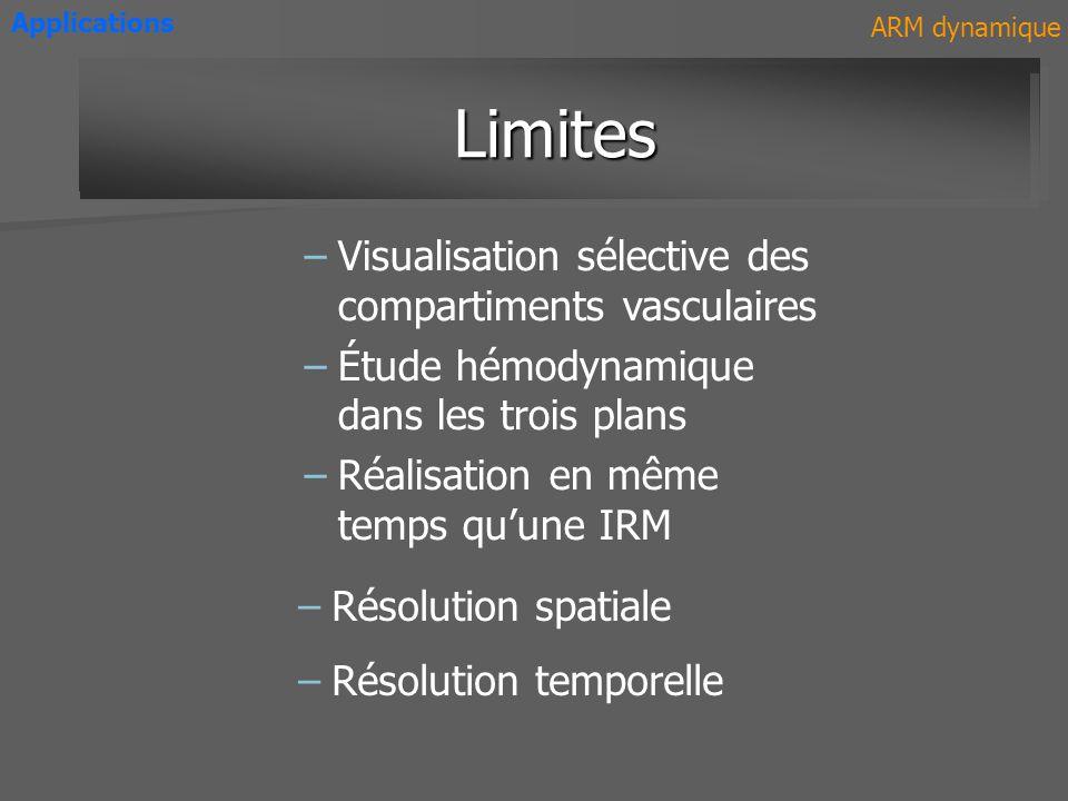 –Visualisation sélective des compartiments vasculaires –Étude hémodynamique dans les trois plans –Réalisation en même temps quune IRM AvantagesAvantag