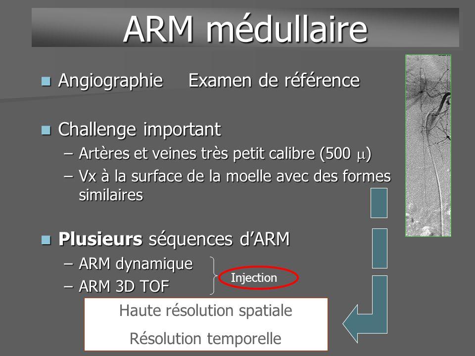 Angiographie Examen de référence Angiographie Examen de référence Challenge important Challenge important –Artères et veines très petit calibre (500 )