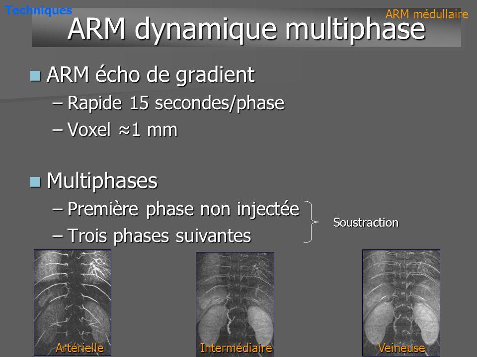 ARM dynamique multiphase ARM écho de gradient ARM écho de gradient –Rapide 15 secondes/phase –Voxel 1 mm –Voxel 1 mm Multiphases Multiphases –Première