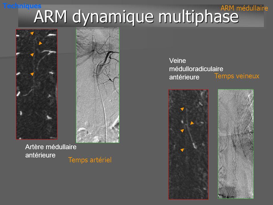 Artère médullaire antérieure Veine médulloradiculaire antérieure ARM dynamique multiphase ARM dynamique multiphase ARM médullaire Temps artériel Temps