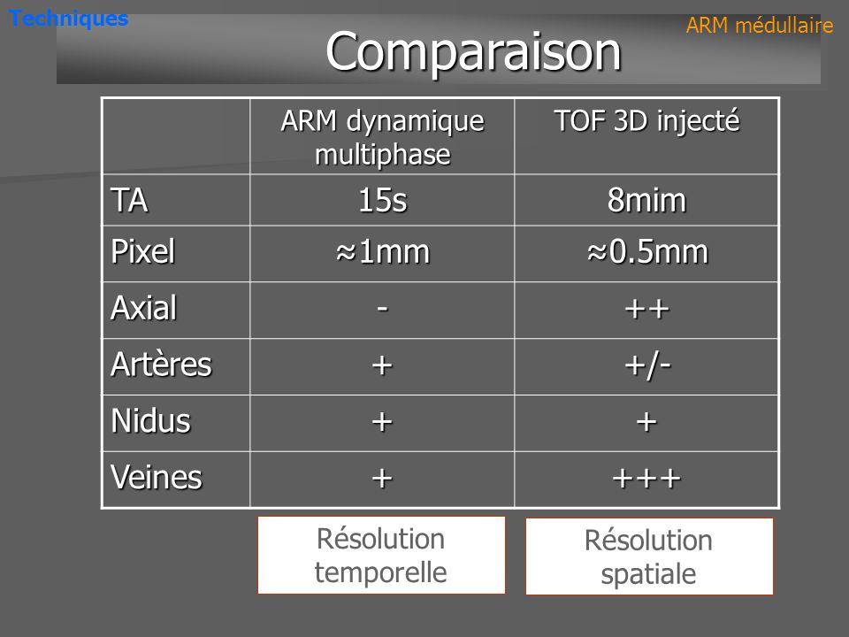ARM dynamique multiphase TOF 3D injecté TA15s8mim Pixel 1mm1mm 0.5mm0.5mm Axial-++ Artères++/- Nidus++ Veines++++ Résolution spatiale Comparaison Comp