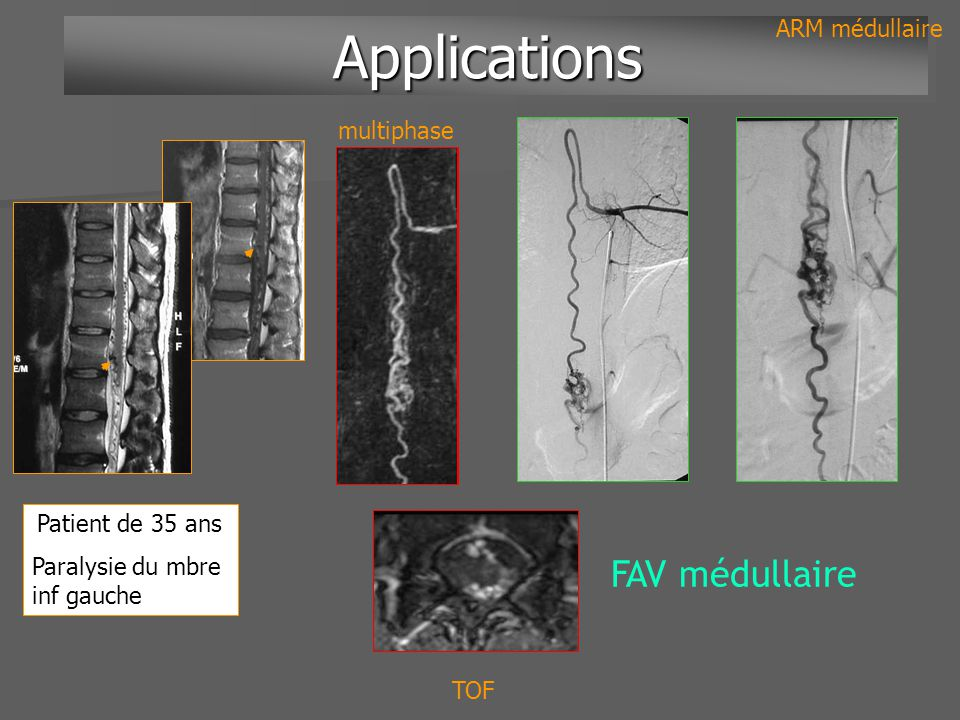 Applications Applications ARM médullaire FAV médullaire TOF multiphase Patient de 35 ans Paralysie du mbre inf gauche
