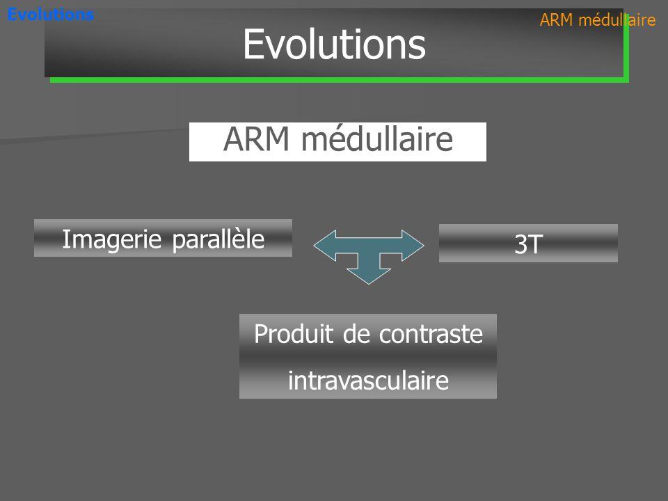 Imagerie parallèle 3T ARM médullaire Evolutions Produit de contraste intravasculaire ARM médullaire