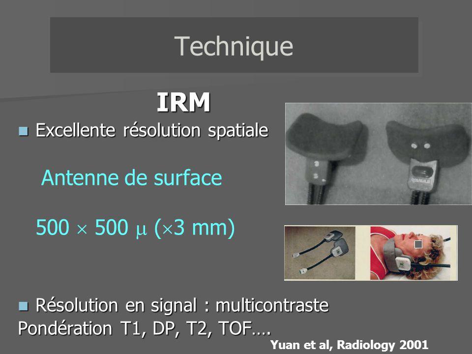 IRM Excellente résolution spatiale Excellente résolution spatiale Antenne de surface 500 500 ( 3 mm) Résolution en signal : multicontraste Résolution