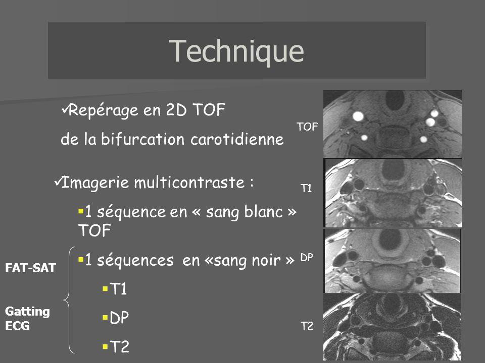 Repérage en 2D TOF de la bifurcation carotidienne Imagerie multicontraste : 1 séquence en « sang blanc » TOF 1 séquences en «sang noir » T1 DP T2 T1 D