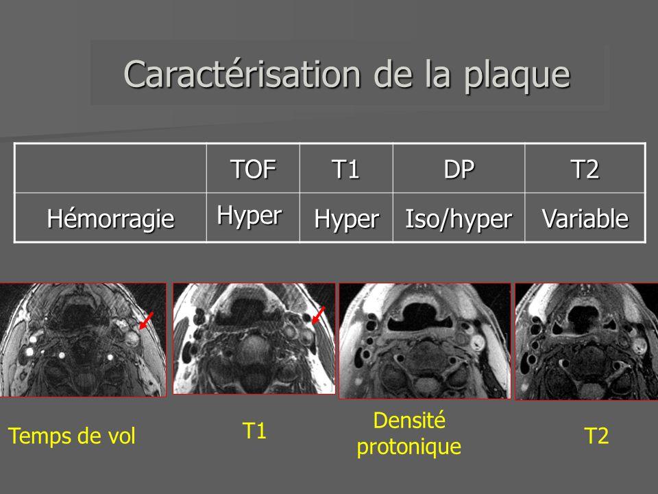 TOFT1DPT2HémorragieHyperIso/hyperVariable Hyper Caractérisation de la plaque Densité protonique Temps de vol T1 T2