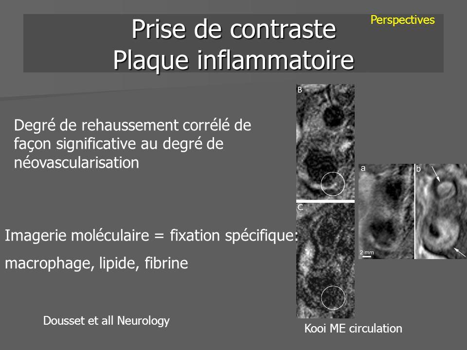 Prise de contraste Plaque inflammatoire Dousset et all Neurology Perspectives Degré de rehaussement corrélé de façon significative au degré de néovasc