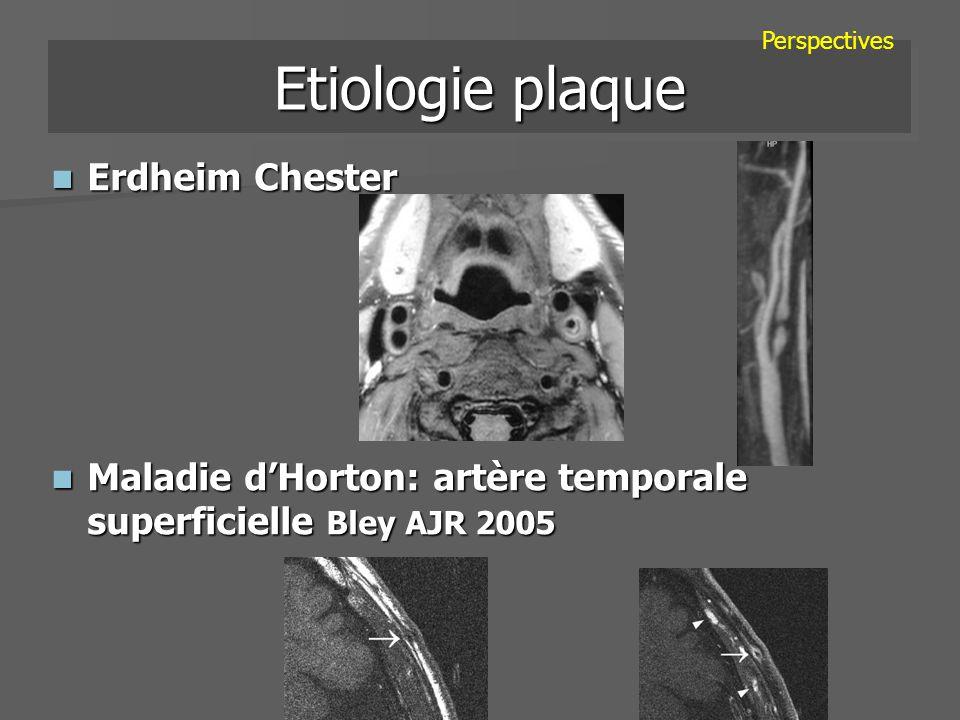 Etiologie plaque Erdheim Chester Erdheim Chester Maladie dHorton: artère temporale superficielle Bley AJR 2005 Maladie dHorton: artère temporale super