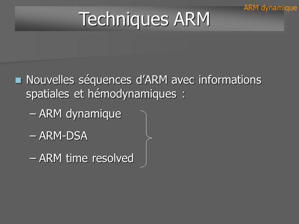 Nouvelles séquences dARM avec informations spatiales et hémodynamiques : Nouvelles séquences dARM avec informations spatiales et hémodynamiques : –ARM