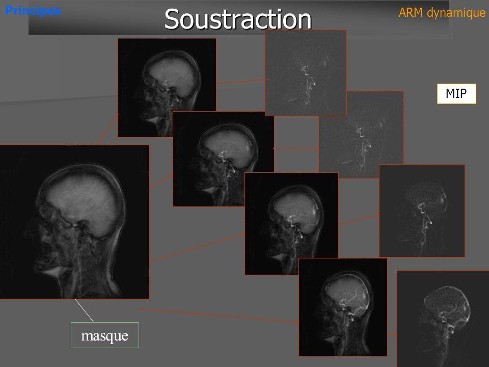 masque SoustractionSoustraction Principes ARM dynamique MIP