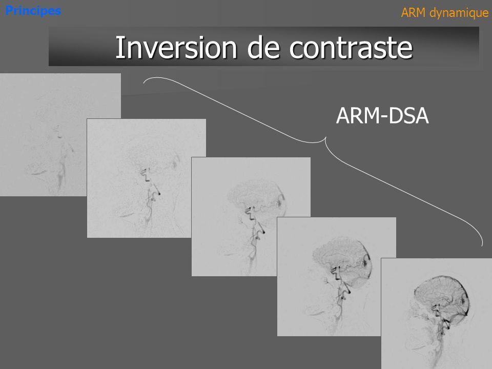 ARM-DSA Inversion de contraste Principes ARM dynamique