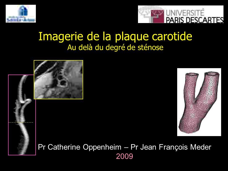 Imagerie de la plaque carotide Au delà du degré de sténose Pr Catherine Oppenheim – Pr Jean François Meder 2009
