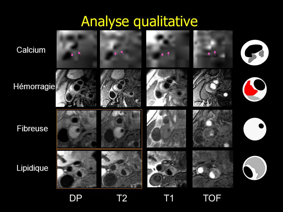 DPT1T2TOF Analyse qualitative Calcium Lipidique Fibreuse Hémorragie
